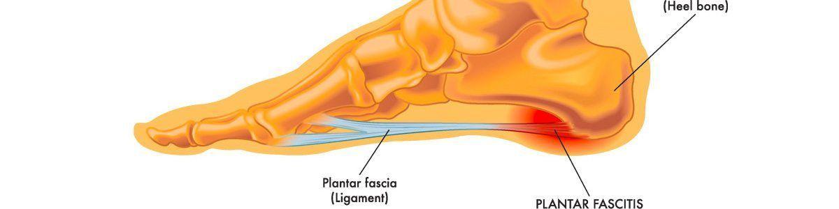 Fascitis Plantar, origen y tratamientos